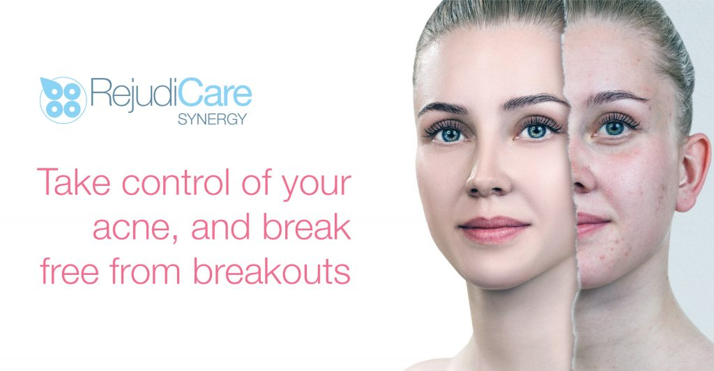 Take control of your acne and break free from breakouts